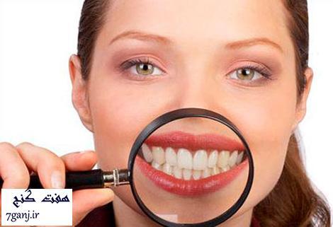 خوراکی هایی که باعث زردی دندان میشوند