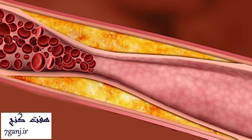 خوراکی های مفید برای پاکسازی رگ ها و درمان تصلب شرایین