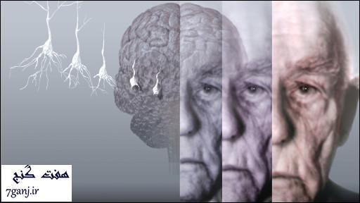 رابطه بین شغل و طول عمر در افراد مبتلا به زوال عقل
