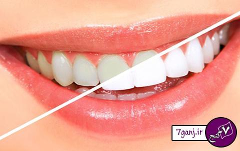 یک روش عالی برای جرم گیری دندان در خانه