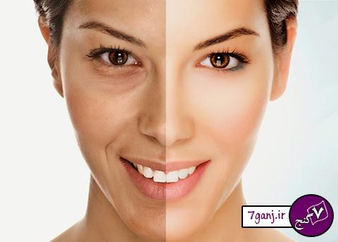 علت کدر شدن و تیرگی پوست صورت چیست؟   روش های درمان
