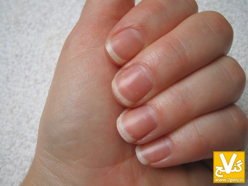 1after-nails