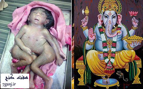 كودك ناقص الخلقه، خداي جديد هندوها