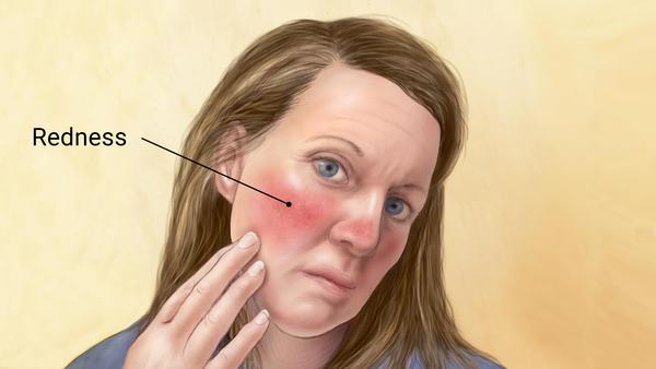 بیماری رزاسه و روشهای مقابله با آن