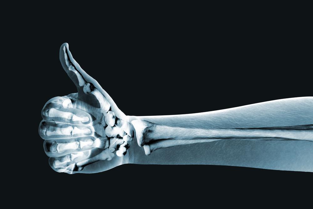استخوان های محکم و سالم