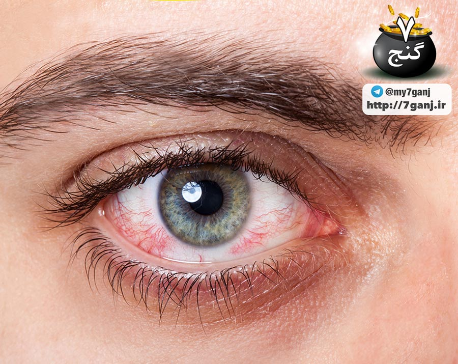 نشانه های بیماری از طریق چشم