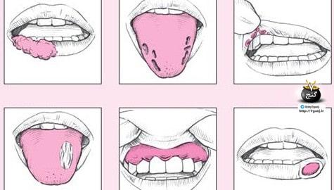 انواع افت دهان