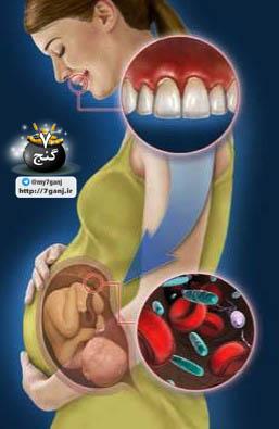 تاثیر سلامت دندان بر جنین