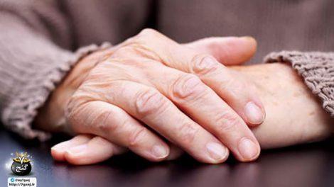 چروک دست