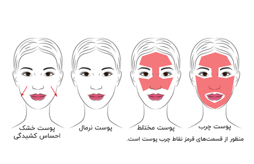 انواع پوست صورت