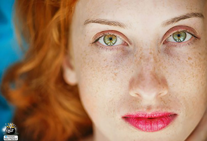 درمان خانگی پوست