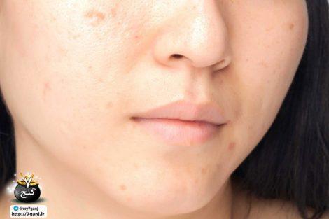 اشتباهات پوستی