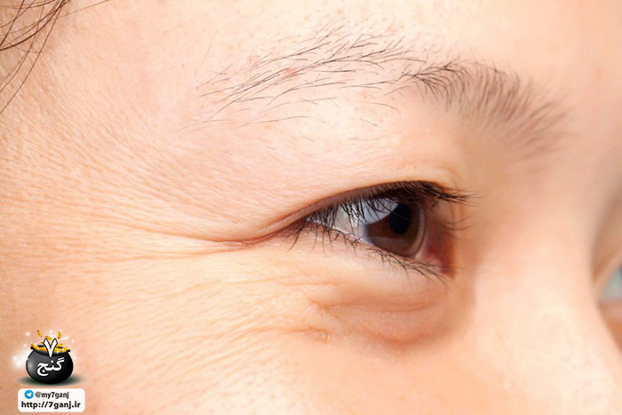 درمان چروک پوست