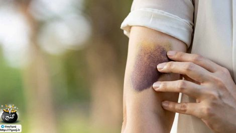 کبود شدن پوست